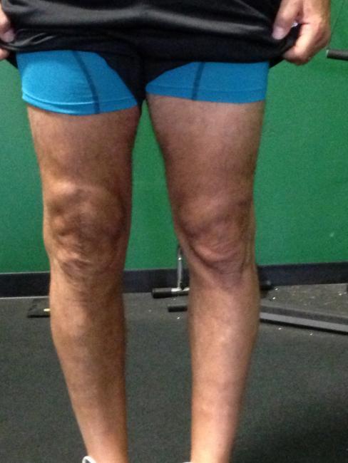 Alternative Strategies Addressing Traditional Knee Rehabilitation